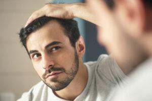 man checking for hair loss
